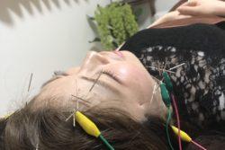 美容鍼の初体験レポート!超痛みに弱い私が美容鍼紹介ブログ書きます。